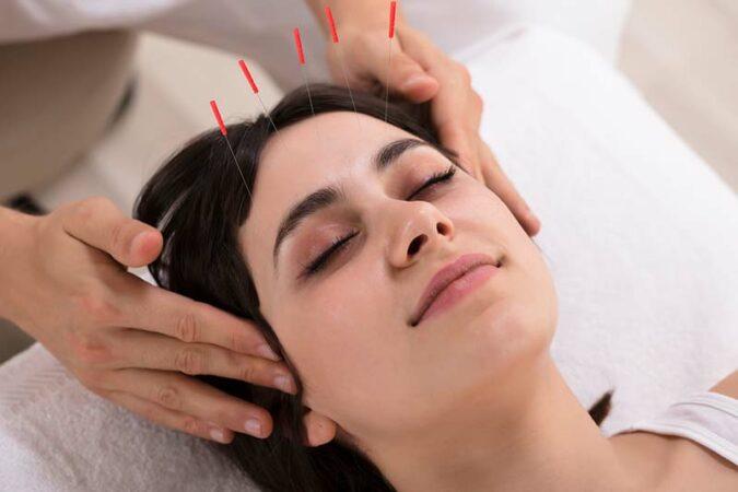Acupuncture, Photo Credit: JEN Lifestyle Medicine